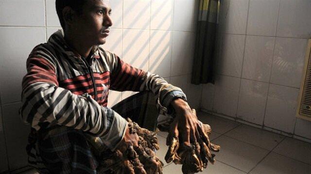 Hayali gerçek oldu: Ağaç adam Abul Bajander tedavi oldu