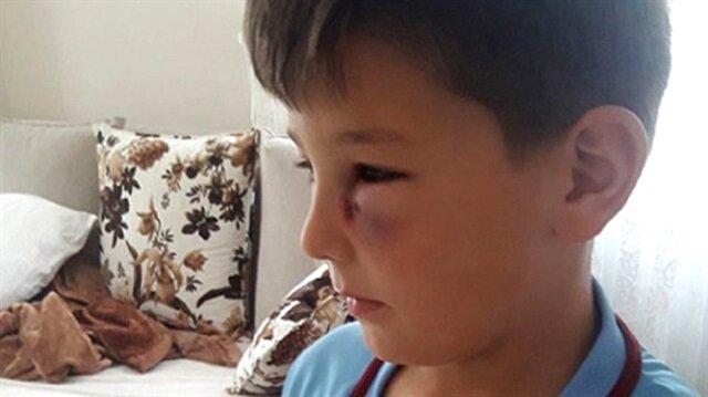 7 yaşındaki çocuğun gözüne maçta davul tokmağı geldi: