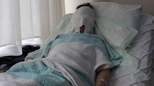 Tartıştığı kız arkadaşının yüzüne kimyasal madde attı