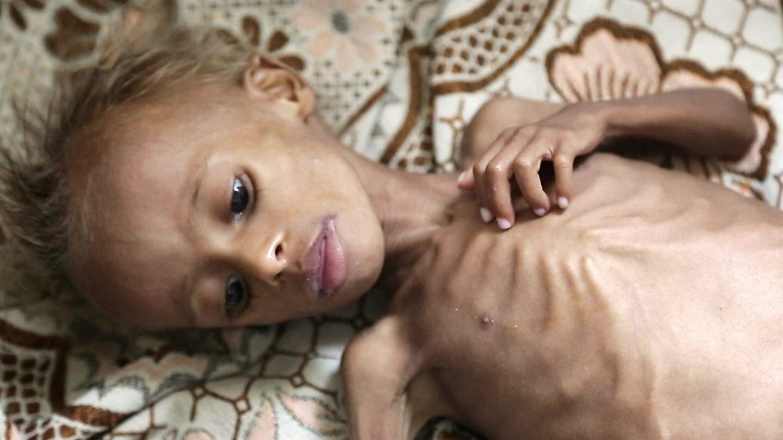 Suudi Arabistan ve İran'ın savaş arenasına dönüşen Yemen'de en büyük sıkıntıyı siviller çekiyor. On binlerce çocuk, açlıktan ölme tehlikesiyle karşı karşıya.