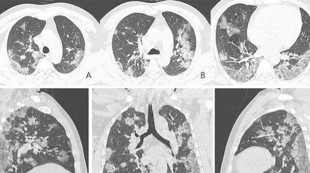 Koronavirüsten ölen kişinin akciğer röntgen filmleri ortaya çıktı
