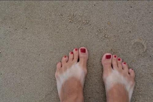 Summer is coming: Yanlış güneşlenmenin 10 ibretlik sonucu